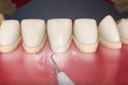 Remoção de Tártaro Clínica Dentária Ideal Sorriso